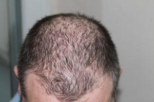 Traiter la chute des cheveux